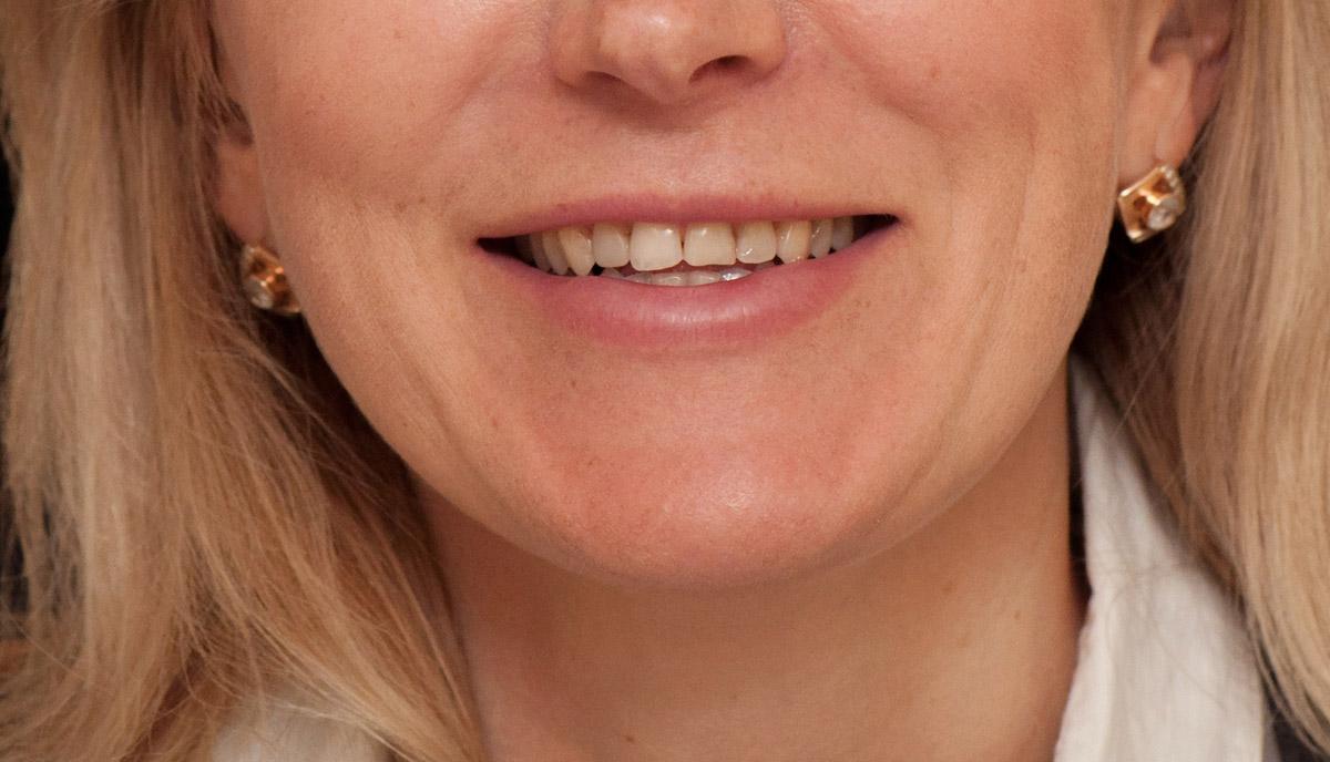 Начало лечение зубов