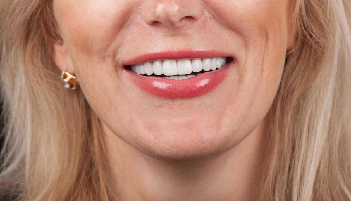 Конечный результат лечение зубов