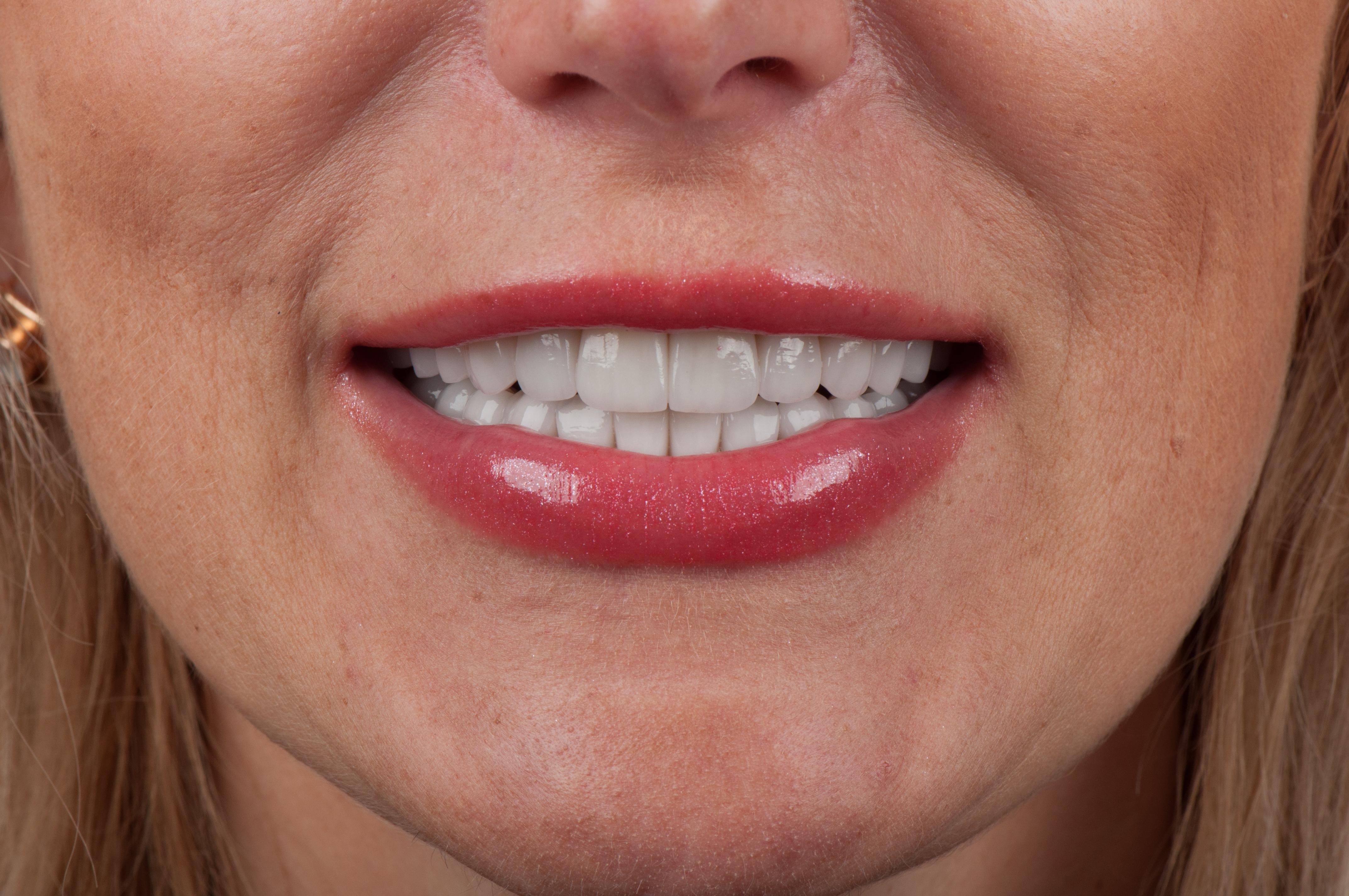 Виниры для зубов процесс